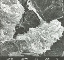 Predatioll of bacteria (small rod-like structures) by amoebae (large organisms) in the soil environment