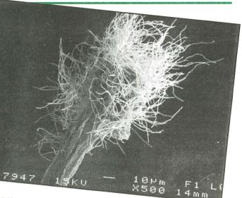 Electron microscope image of actinomycete filaments growing out of a wheat root fragment