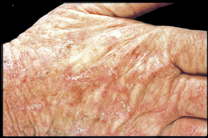 Photo of hand showing solar keratoses